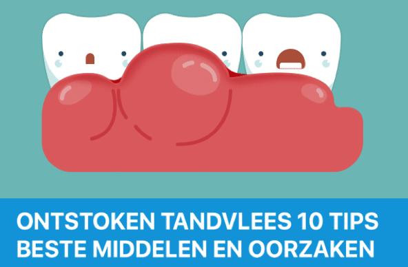 beste mondspoeling ontstoken tandvlees