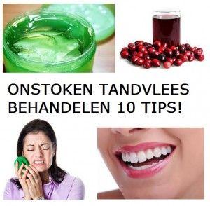 Ontstoken Tandvlees Behandelen? | 10 Tips!