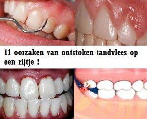 oorzaak ontstoken tandvlees