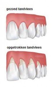 oorzaak teruggetrokken tandvlees