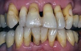 parodontitis genezen