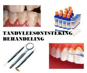 tandvleesontsteking behandeling
