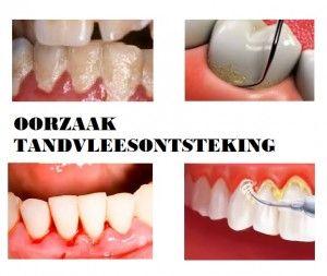 tandvleesontsteking oorzaak