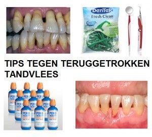 teruggetrokken tandvlees