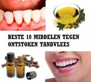 middel tegen ontstoken tandvlees