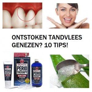 Ontstoken tandvlees genezen? | 10 Tips herstellen!