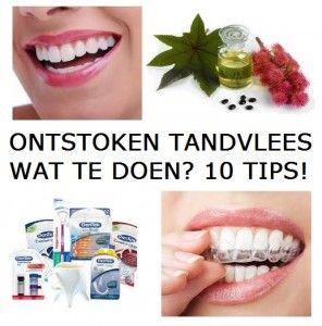 Wat te doen tegen ontstoken tandvlees? | 10 Tips!