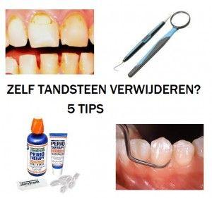 zelf tandsteen verwijderen