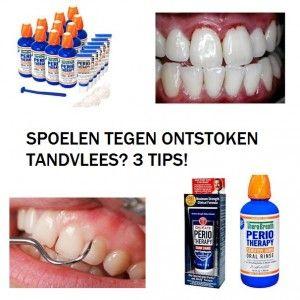 ontstoken tandvlees spoelen